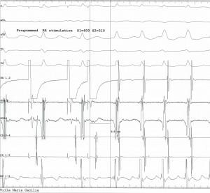 Atrioventricular Nodal Reentrant Tachycardia
