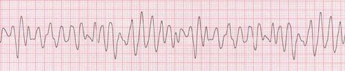 Ventricular Fibrillation