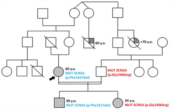 Family tree of a family in which a form of Brugada segregates
