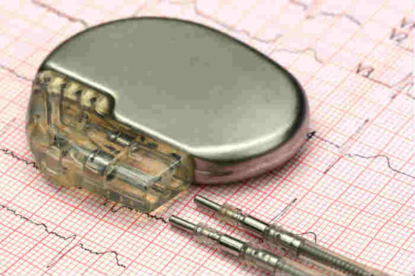 implantable cardiac defibrillator (ICD)