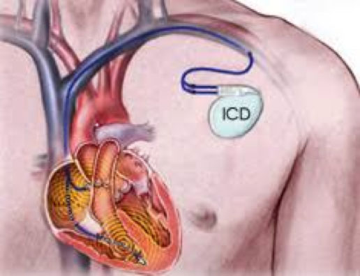 By a small incision, the defibrillator is inserted into the pectoral region subcutaneously or under the pectoral muscle