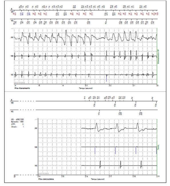 if the heart rate is too slow, the ICD can deliver a stimulation to the atrium or ventricle, behaving like a pacemaker
