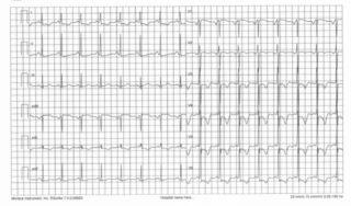 Alterazioni aspecifiche del tracciato ECG (con alti voltaggi del QRS e onde T negative) e aritmie (tachicardia da rientro nodale, fibrillazione e flutter atriale, aritmie ventricolari)