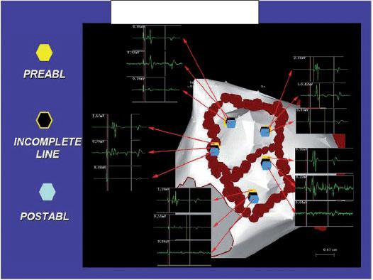 Atrial Fibrillation (AF) Ablation