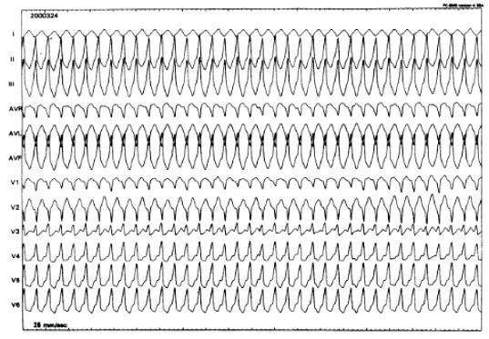 Ventricular Tachycardias