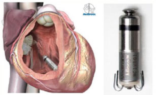 MICRA device implanted in the wall of the right ventricle