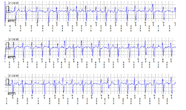 Example of a paroxysmal atrial fibrillation episode identified with ILR