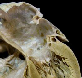 occlusione-percutanea-auricola-sinistra