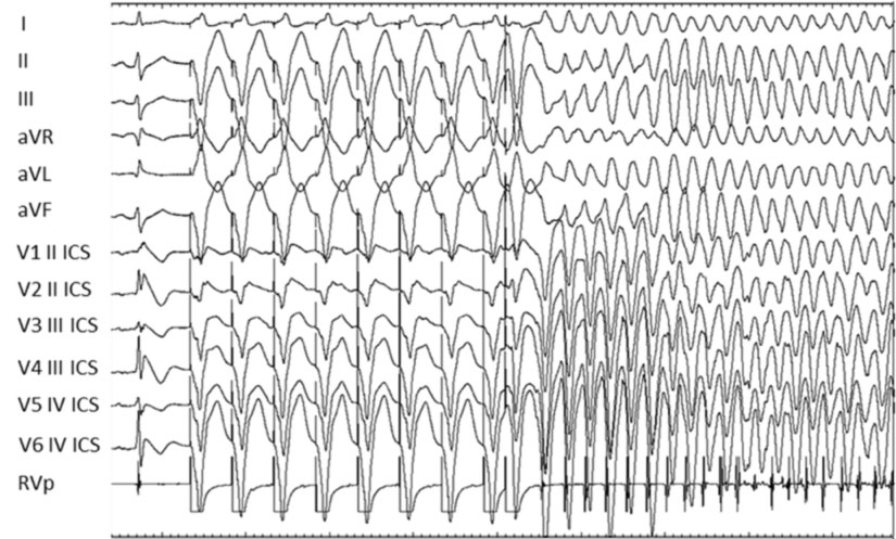 Electrophysiological Study
