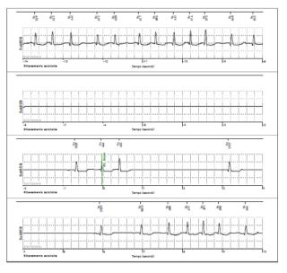 tracciato ECG bradiaritmie