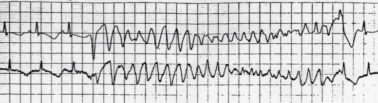 Sindrome del QT lungo