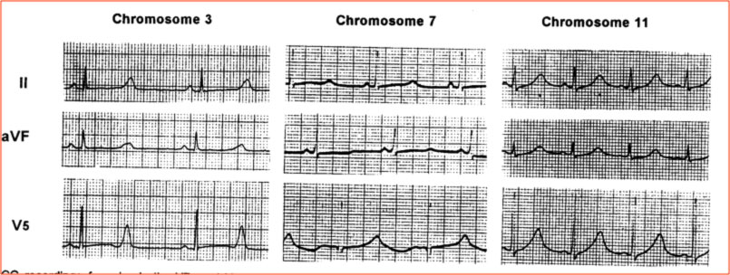 Sindrome del QT lungo Long QT Syndrome
