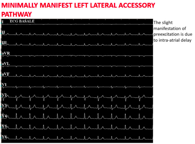 Wolff-Parkinson-White syndrome ablation