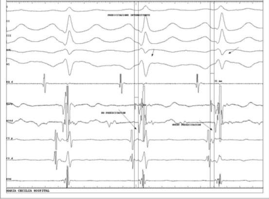 Wolff-Parkinson White Syndrome WPW
