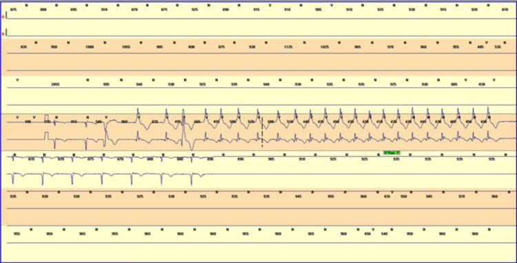 Tachicardia ventricolare monomorfa (13 sec) in paziente con DCM (FEVS 25%)