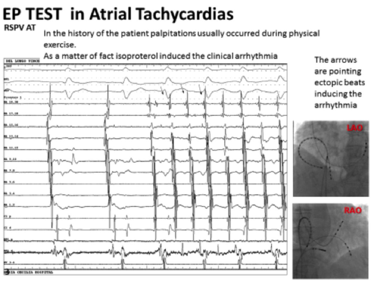 Ablation of Atrial Tachycardia